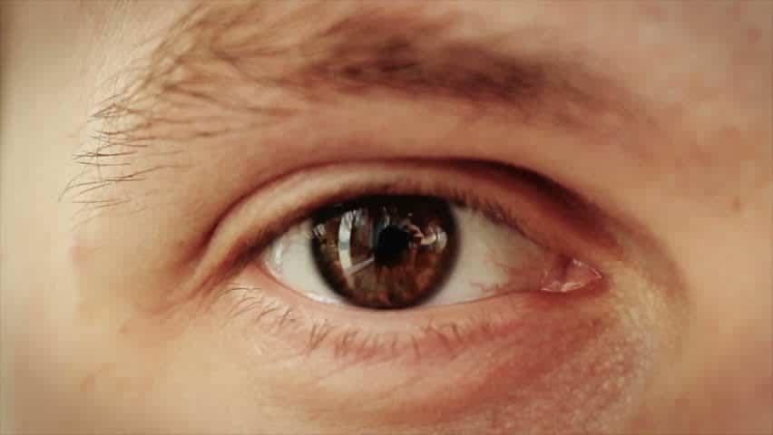 Tips untuk Mencegah Glaukoma